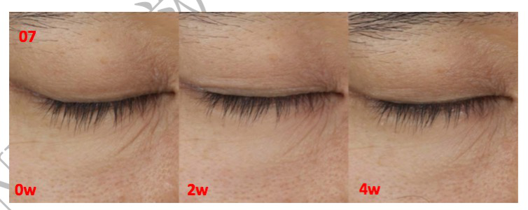 news-Why can FN Fibronectin repair skin, remove acne, as well as fade fine wrinkles-NOX BELLCOW-img-2
