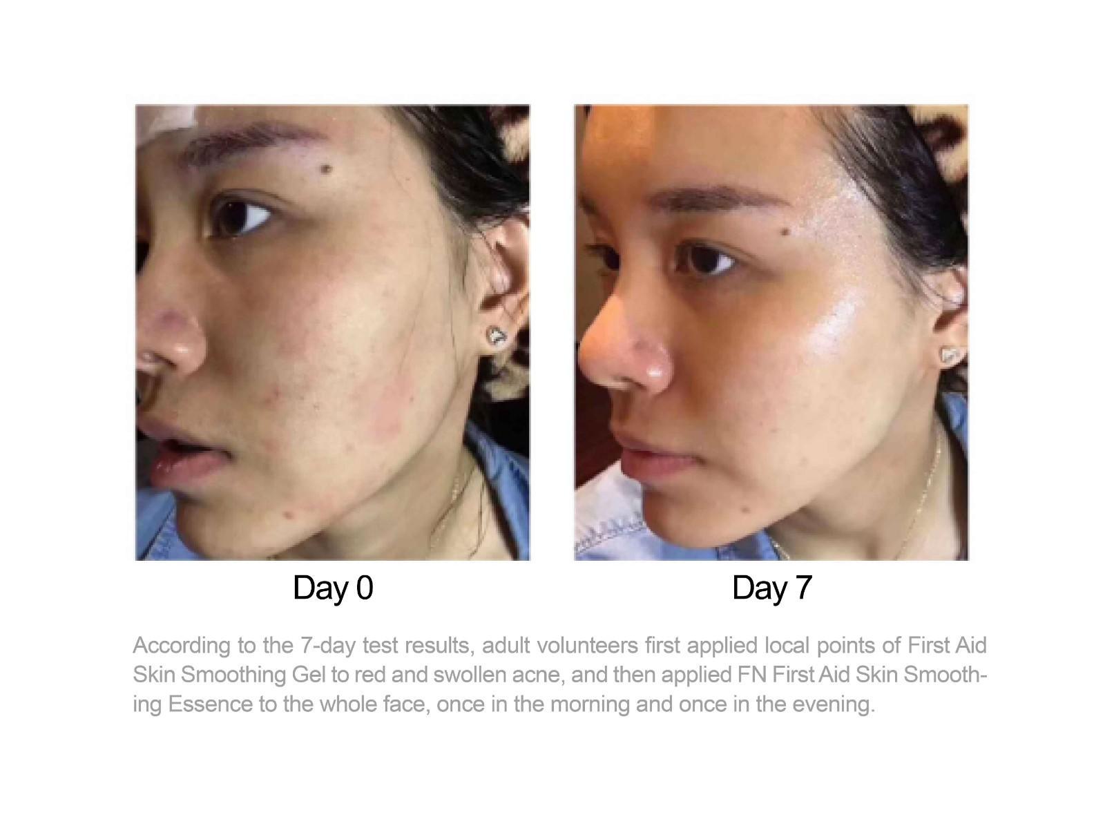 online skin products black manufacturer for women